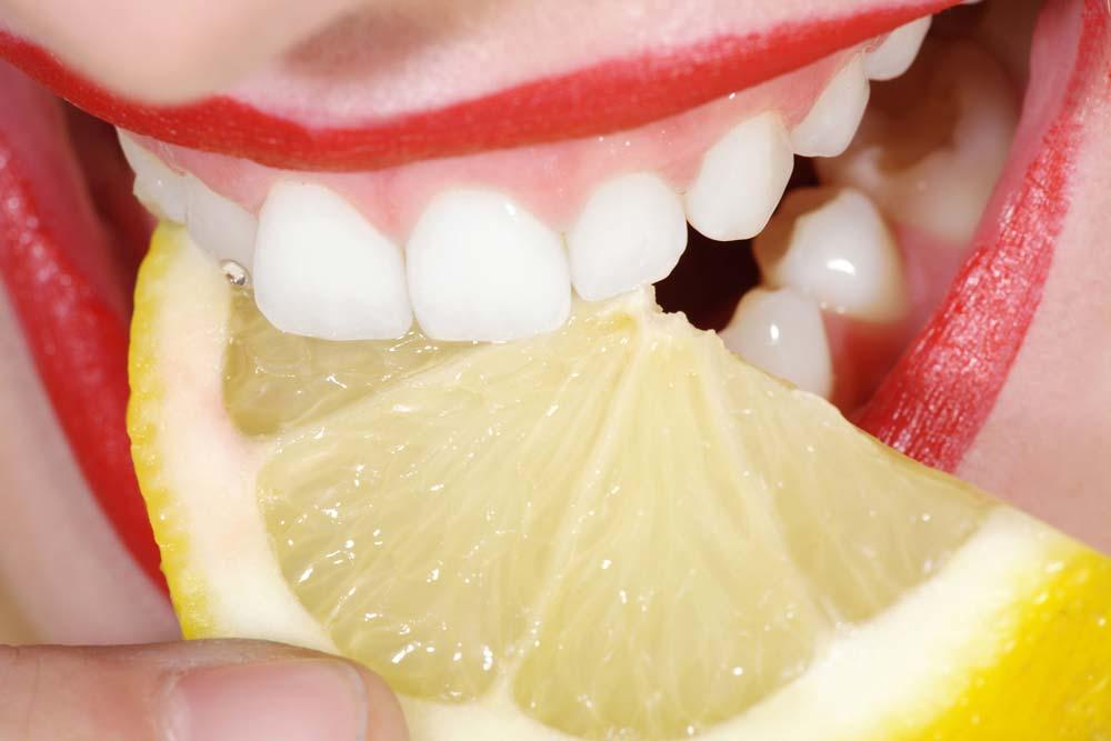 sbiancamento denti con limone