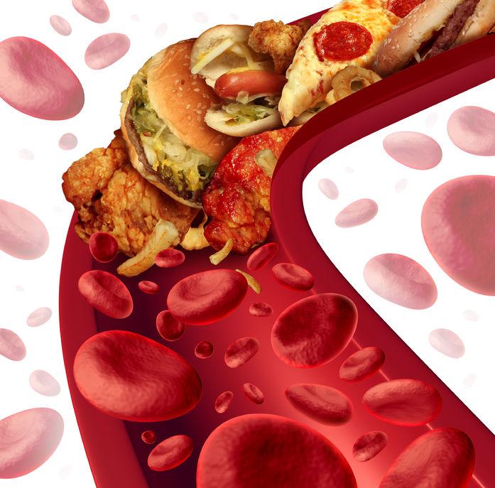 vena ostruita dal colesterolo - cibi spazzatura