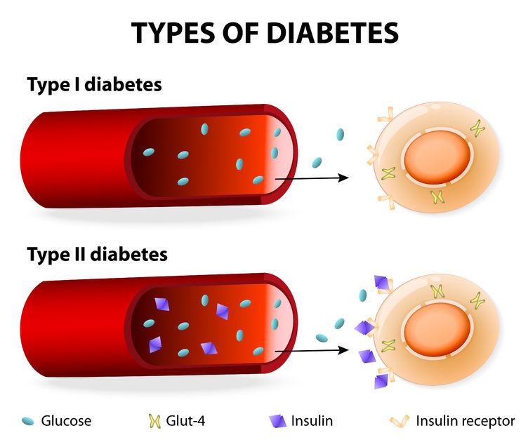 diabete tipo 1 tipo 2