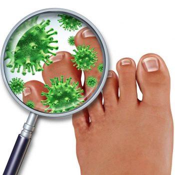 Micosi alle unghie del piede
